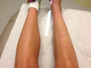 Muscle atrophy of the calves, which looks healthier?